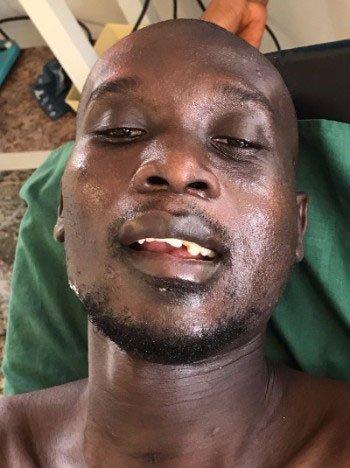 Emmanuel patient Egbe 2