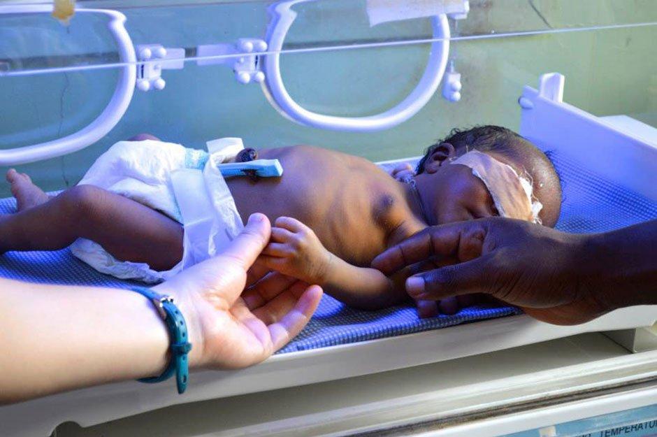 Egbe baby in incubator